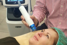 DeAge micro needle fractional radiofrequency